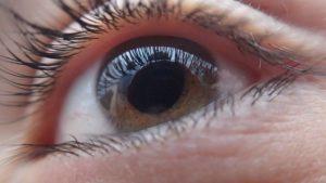 Treat glaucoma | Alaina Kronenberg MD | Dearborn Michigan