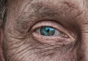 cataract   Alaina Kronenberg MD